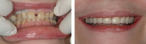 Crowns used to close the space, avoiding braces