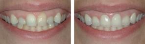 Dental Implants & Porcelain Crowns
