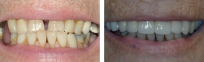 Partial Smile Makeover